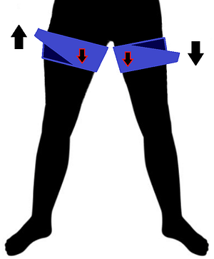 Fit cuffs, fitcuffs, okklusionstræning occlusion training, blood flow restriction exercise, oclusao vascular, vascular occlusion vascular occlusion training bfrtraining kaatsu, bfr, bfrt, blood flow restriction therapy, bfr exercise, okklusjonstrening, okklusiontraining, ocklusionsträning